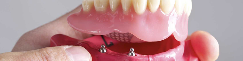 Restorative Dentistry Flat Rock MI